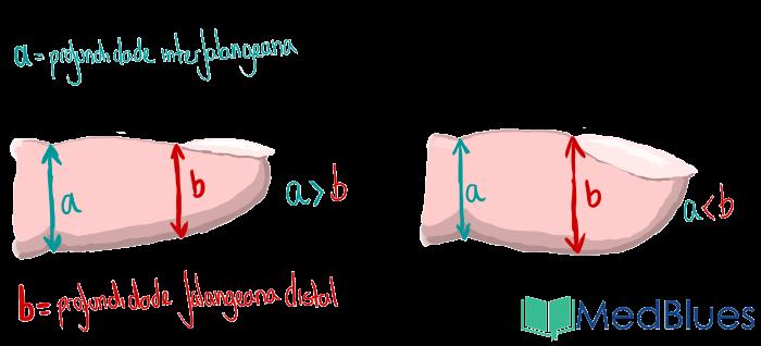 baqueteamento-digital-relação-profundidade-interfalangeana